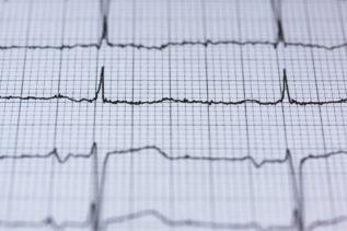 Czujnik oparty na sztucznej inteligencji pozwoli monitorować niewydolność serca 22