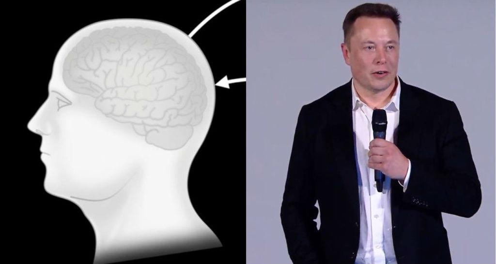 Wszystko, co wiemy o nadchodzącej konferencji Neuralink. To już 28 sierpnia!
