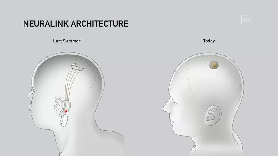 To już działa! Podsumowanie konferencji Neuralink 2020