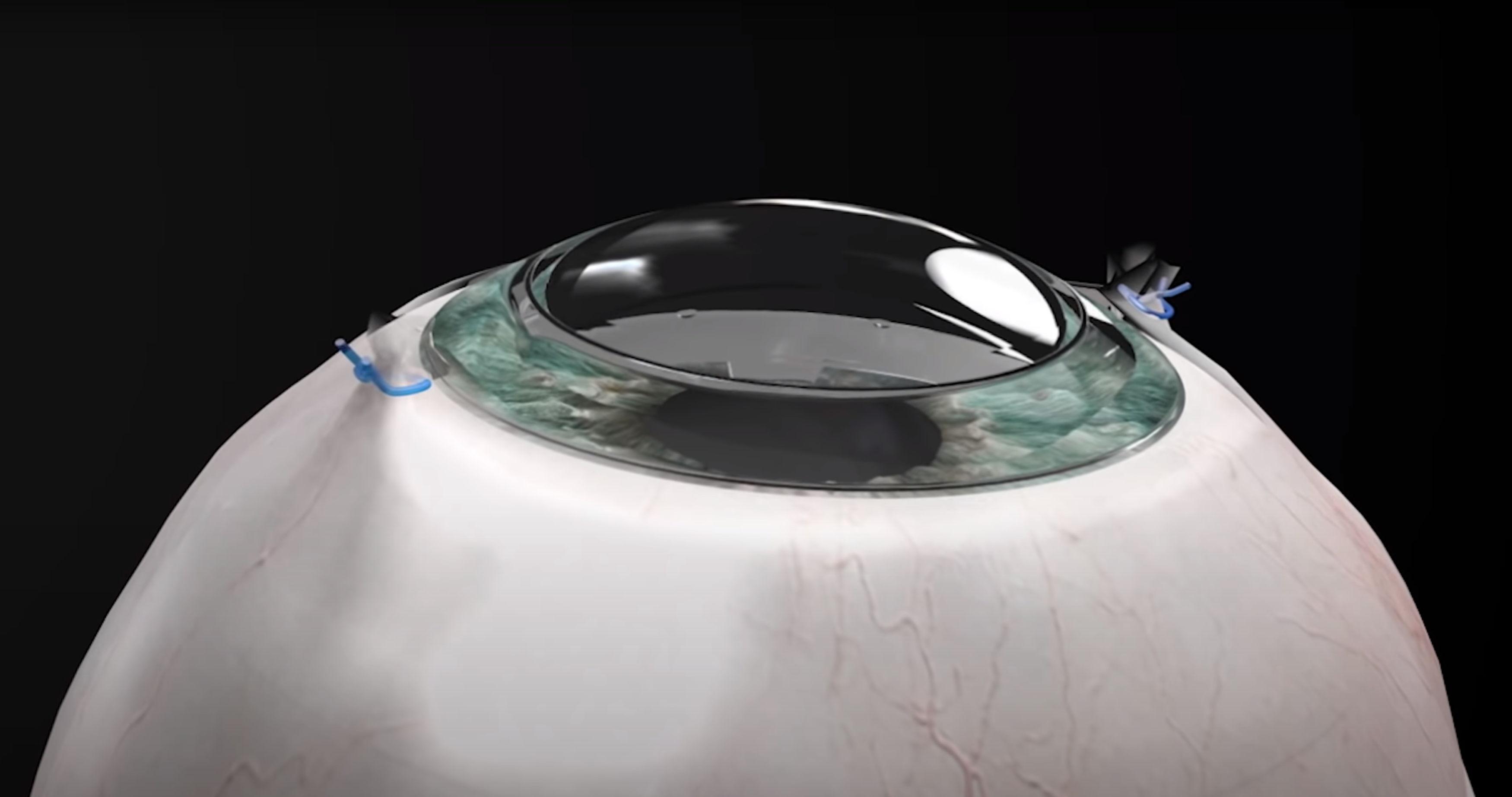 Syntetyczna rogówka pozwoliła odzyskać wzrok